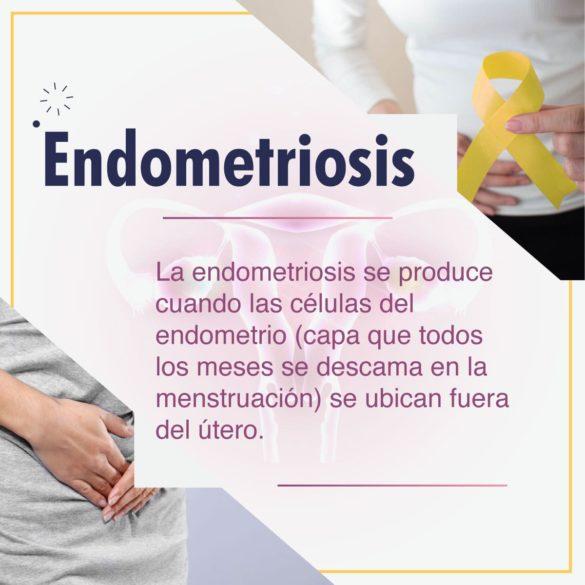 Conoce la endometriosis